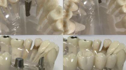 İmplant Diş Yapımı Modeli
