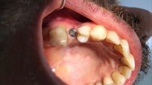 Tek implant diş iyileşme başlığı